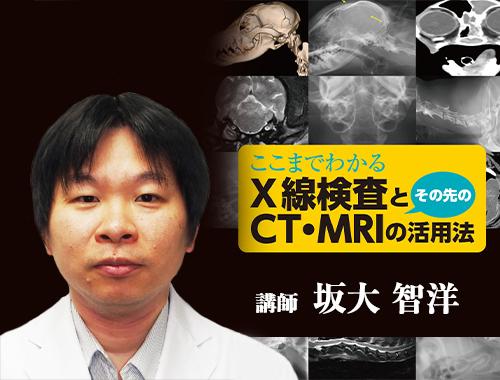 ここまでわかるX線検査とその先のCT・MRIの活用法